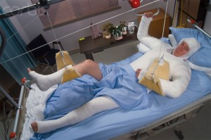 Hospital Patient in a Full Body Cast